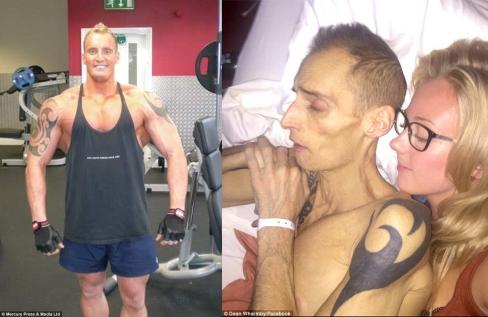dean_wharmby_ex-bodybuilder_cancer